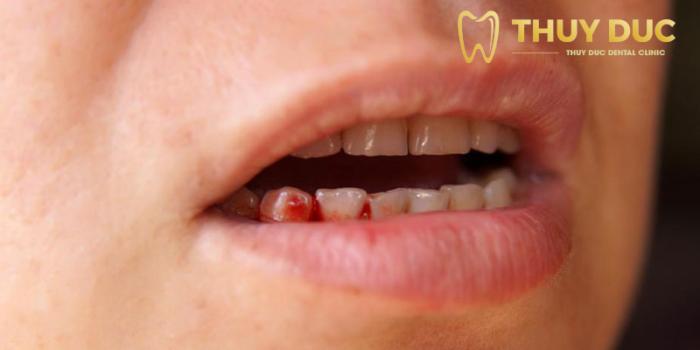 Biến chứng nguy hiểm có thể xảy ra sau khi cấy ghép implant 1