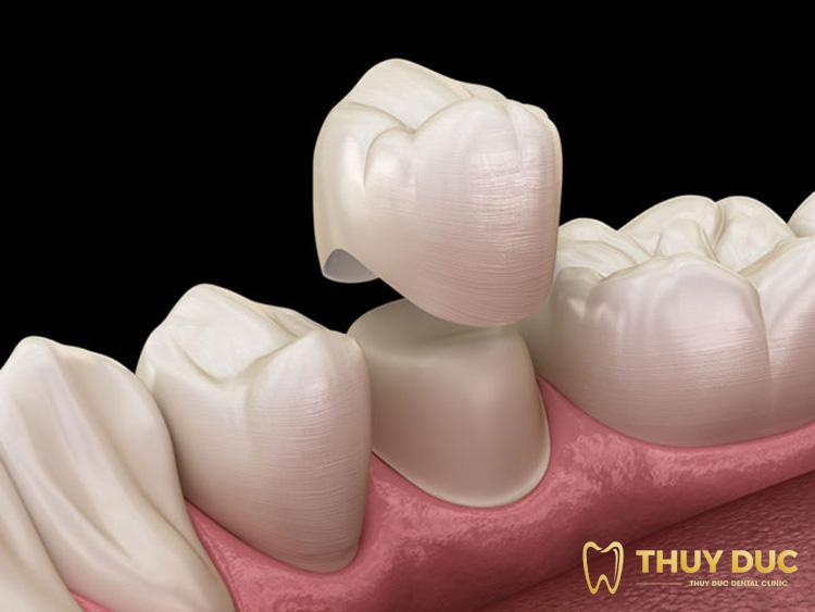 Phương pháp bọc răng sứ 1