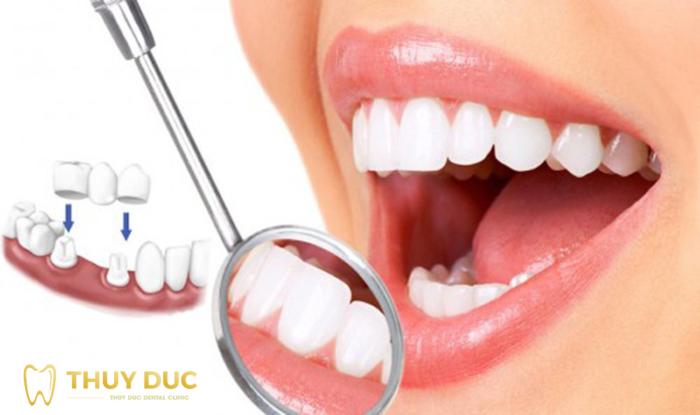 Thời gian tồn tại của răng sứ 1