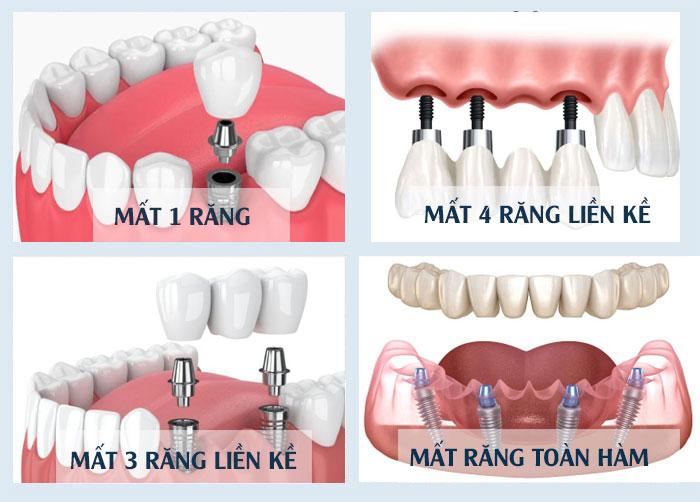 Các trường hợp nên trồng răng implant 1