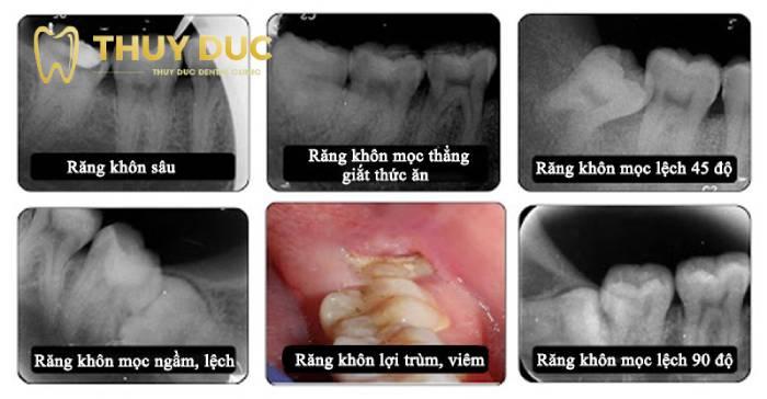 Các trường hợp răng khôn cần được nhổ bỏ 1