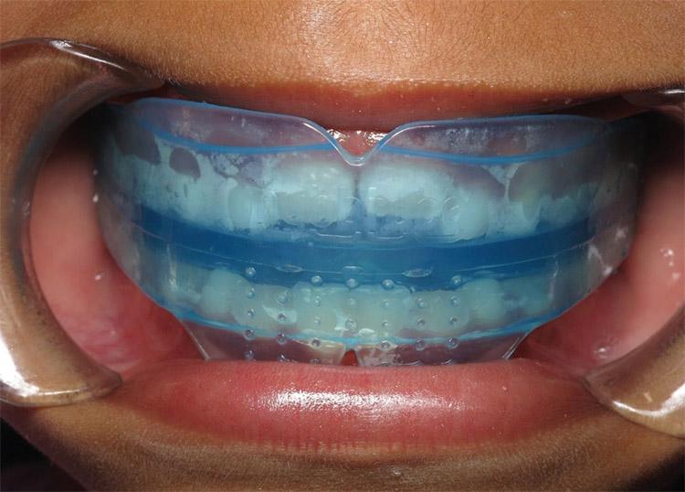 Cách sử dụng niềng răng Silicon 1
