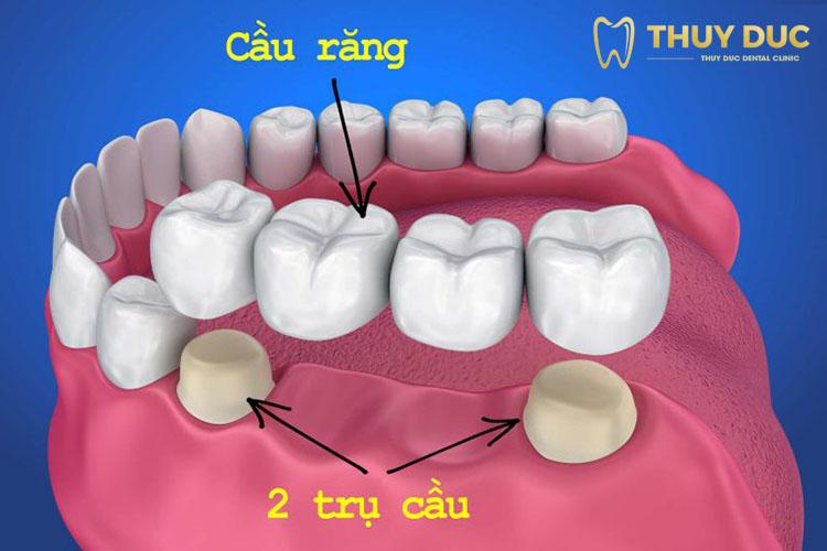 2. Phương pháp làm cầu răng sứ 1
