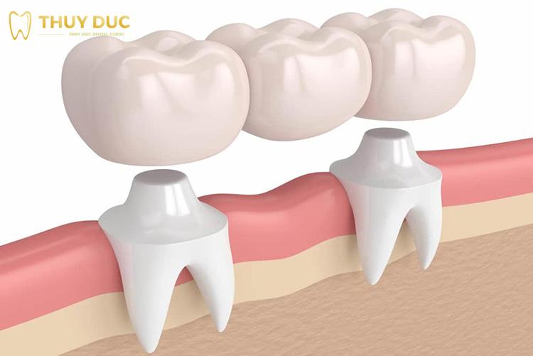 Cầu răng sứ là gì? 1