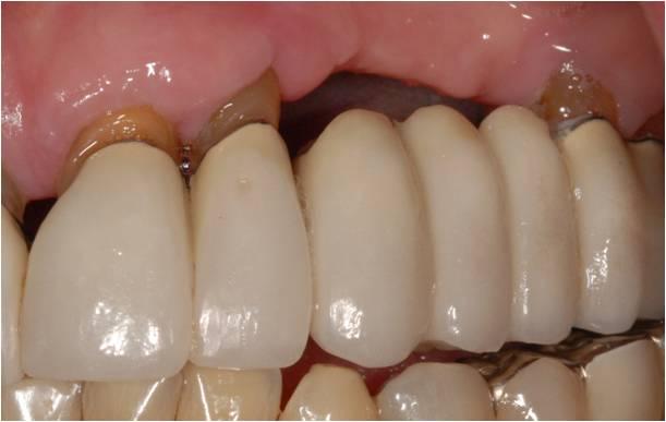 2. Bảo tồn răng thật kế bên 1