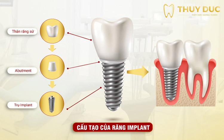 Cấy ghép răng Implant nên ăn gì để mau lành thương? 1