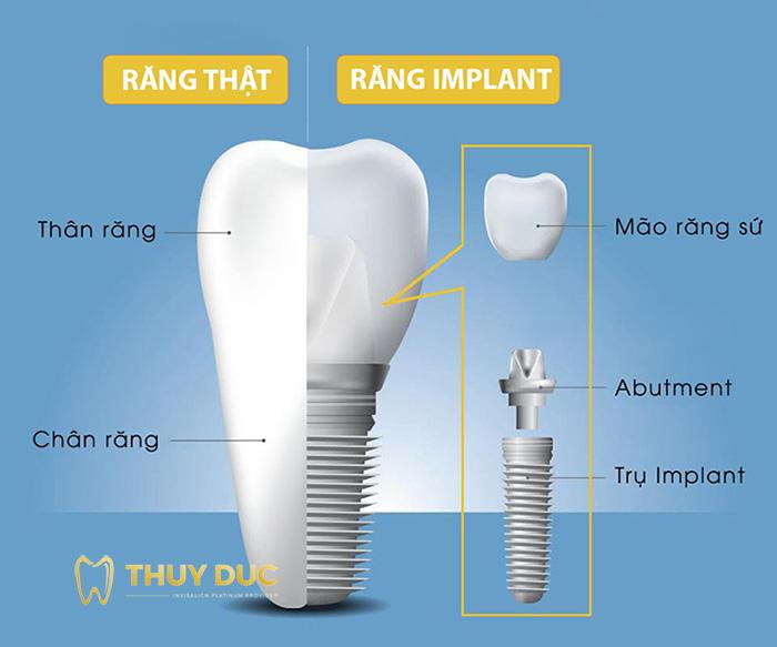 Phương pháp cấy ghép Implant 1