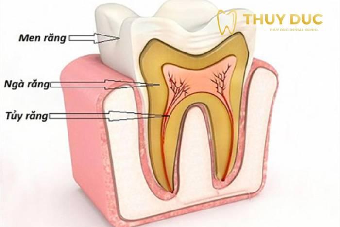 1. Viêm tủy răng là bệnh gì? 1