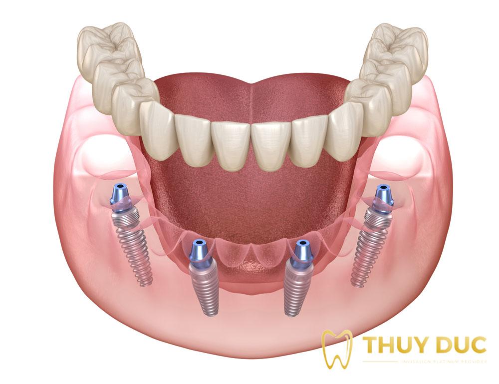 Cấy ghép Implant All On 4 là gì? Khi nào nên sử dụng cấy ghép Implant All On 4? 1