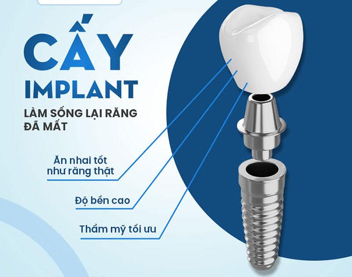 Cấy ghép Implant 1