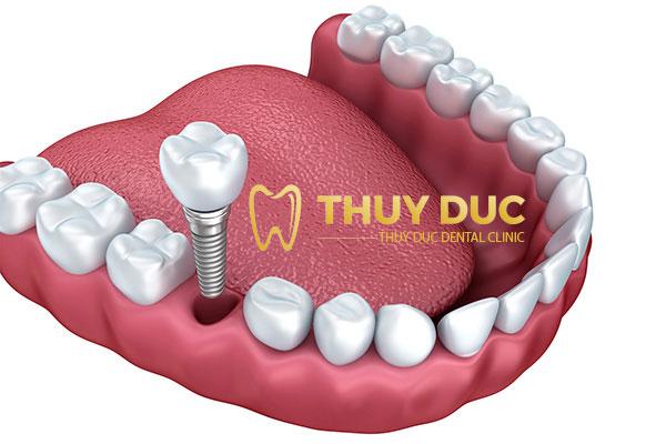 Trồng răng giả cố định Implant 1