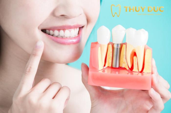 Hướng dẫn chăm sóc răng miệng, ngừa viêm chân răng sau cấy ghép Implant 1