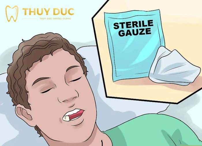 Nhổ răng khôn xong nên ăn gì - kiêng gì? 1