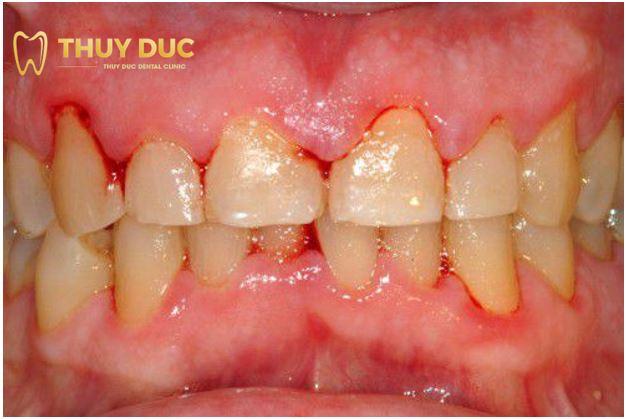 Những biến chứng có thể xảy ra sau khi trồng răng Implant 1