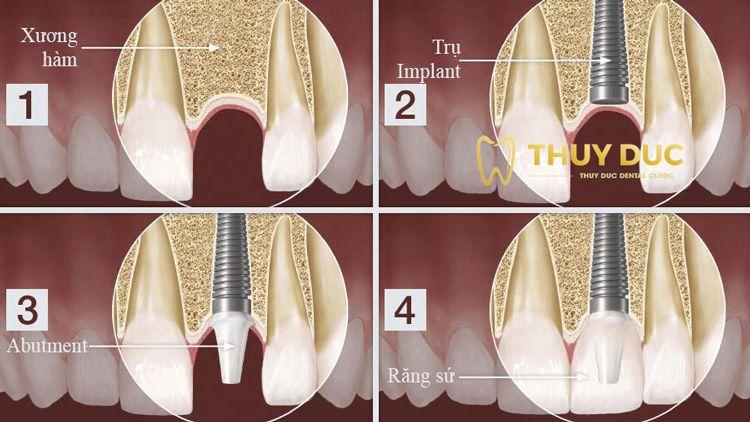 3. Bảo tồn răng thật 1