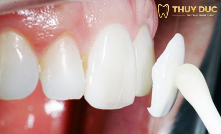 Chi phí đắp mặt răng nanh 1