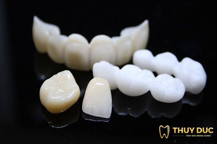 Hạn chế của trồng răng sứ bắc cầu 1