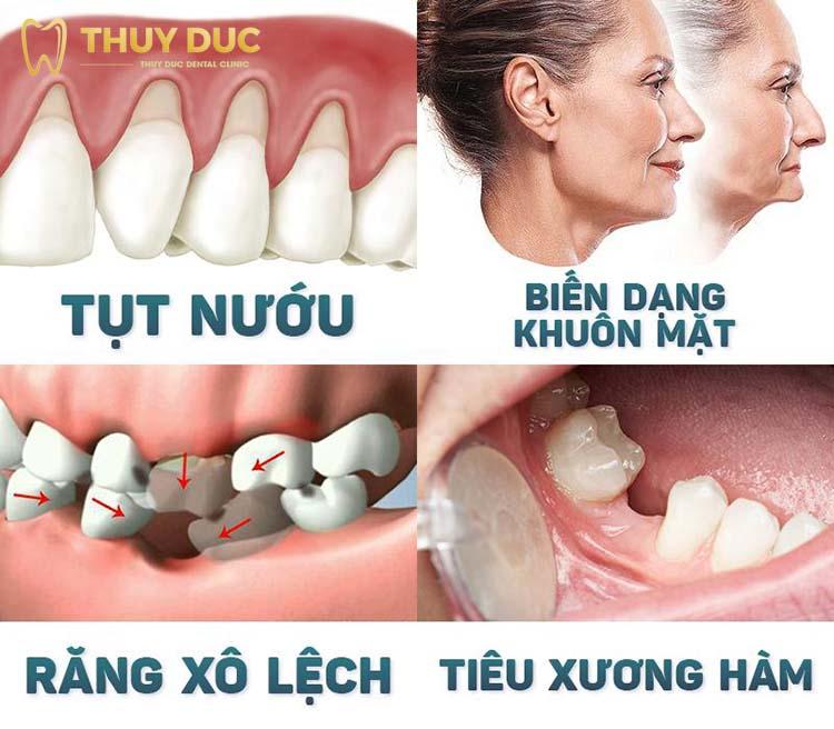 Hậu quả nghiêm trọng khi mất răng nanh 1