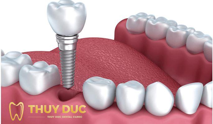 Những điều cần biết về phương pháp cấy ghép Implant 1