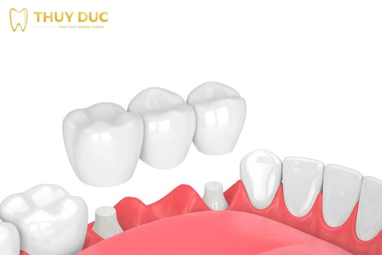 Làm cầu răng sứ có bền không? Sử dụng được bao lâu? 1