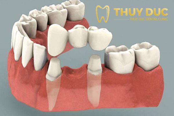 Ưu và nhược điểm của phương pháp trồng răng giả cố định bằng cầu sứ 1