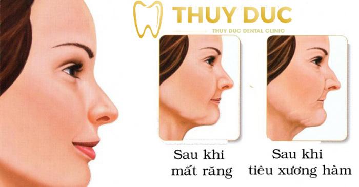 5. Những thay đổi về ngoại hình trên khuôn mặt 1