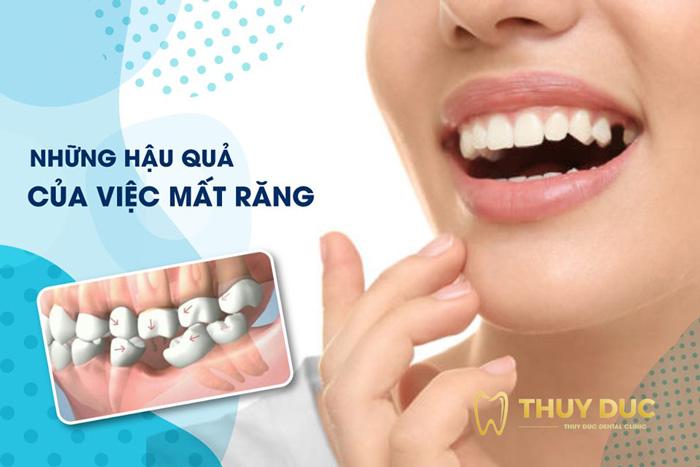 Mất răng gây ảnh hưởng gì? 1
