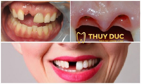 Mất răng không trồng răng giả có ảnh hưởng gì không? 1