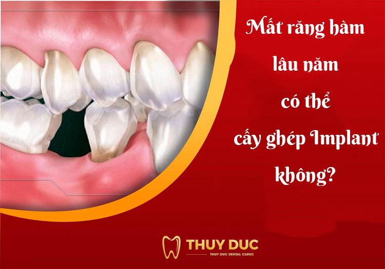 Mất răng hàm lâu năm có thể cấy ghép implant không? 1