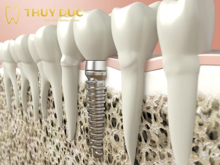 Có nên sử dụng Mini implant khi trồng răng implant? 1