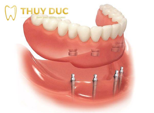 Mini implant được sử dụng trong những trường hợp nào? 1