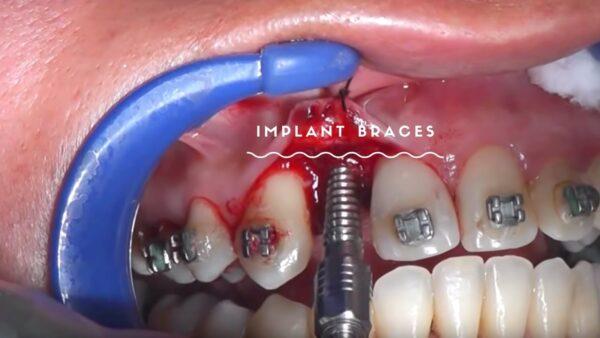 Nên niềng răng trước hay trồng răng Implant trước? 1