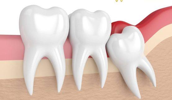 Nhổ răng khôn có đau không? Làm thế nào để giảm đau
