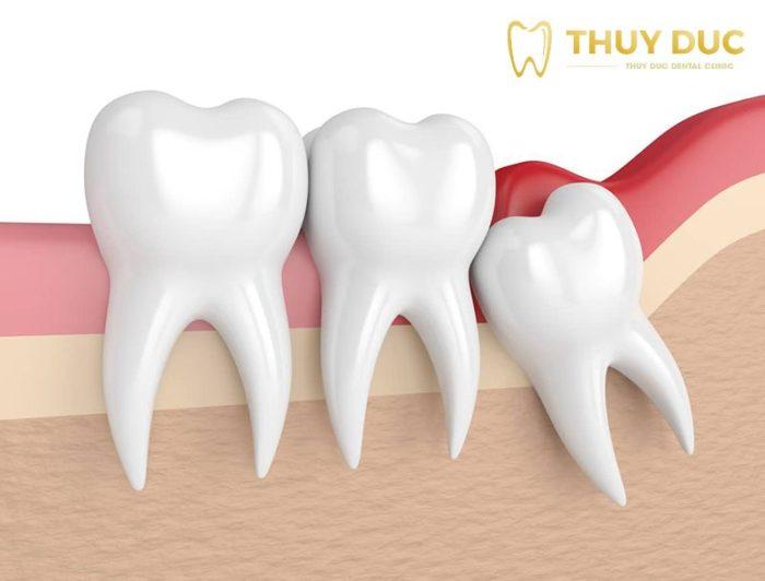 Nhổ răng khôn có đau không? Làm thế nào để giảm đau 1