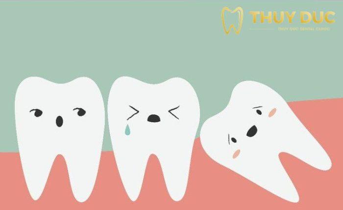 Tại sao nên nhổ răng khôn càng sớm càng tốt? 1