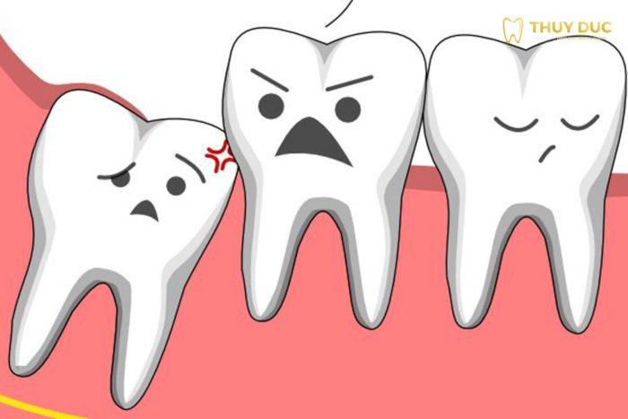1. Răng khôn hàm dưới - khi nào nên nhổ? 1