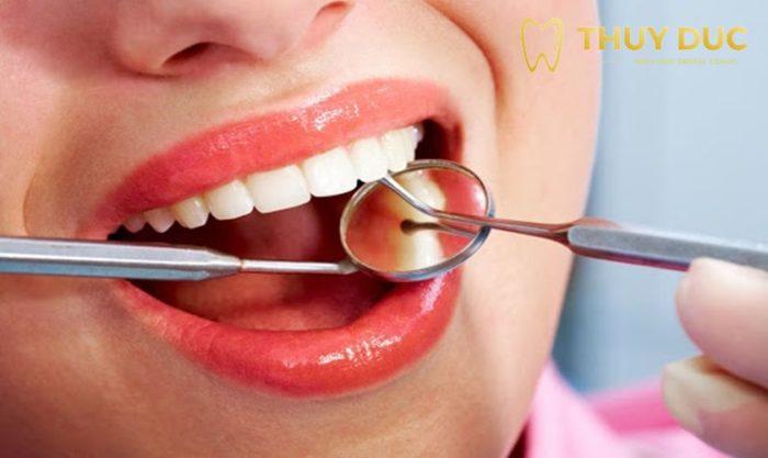 Nhổ 4 răng khôn cùng lúc có được không? 1