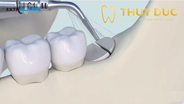 Trường hợp nào răng khôn mọc thẳng không phải nhổ? 1