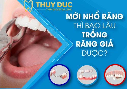 Nhổ răng bao lâu thì có thể trồng được răng giả? 1