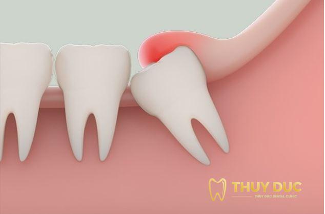 Những trường hợp nào nên nhổ răng khôn?