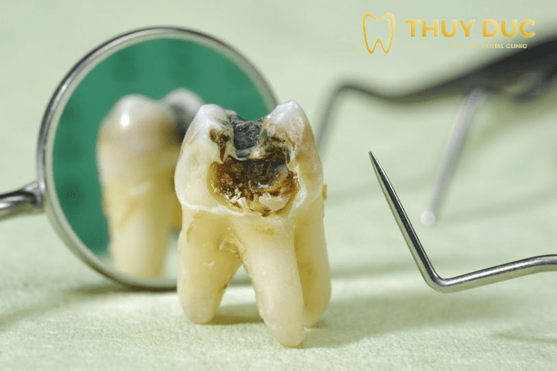 Có nên nhổ răng khôn hàm dưới? 1