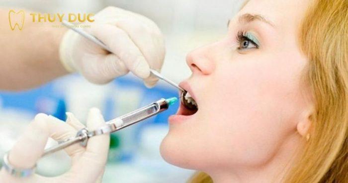 Nhổ răng khôn hàm trên có đau không? Giá bao nhiêu? 1