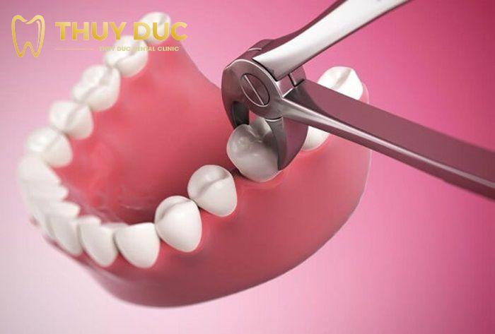 Nhổ răng khôn hàm trên bằng kìm 1