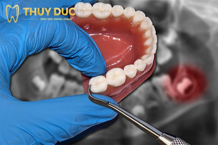 Răng khôn nên nhổ mấy cái? 1
