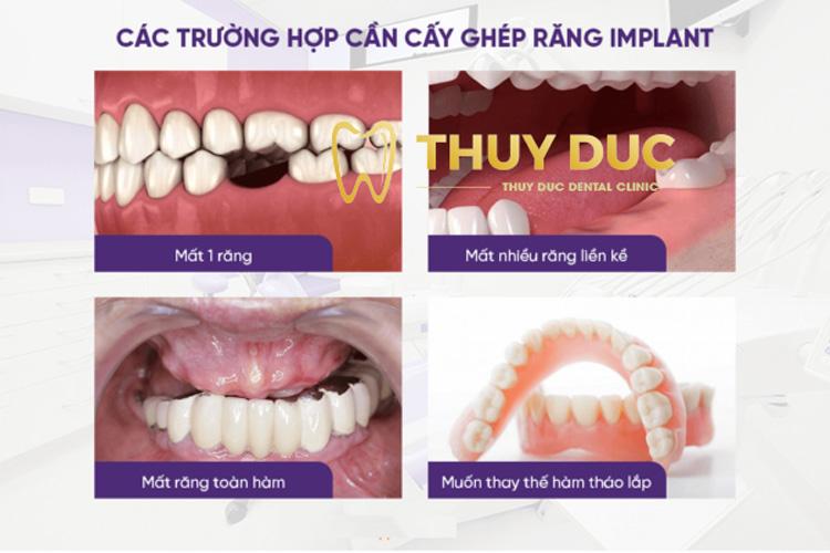 Những người nên trồng răng Implant 1