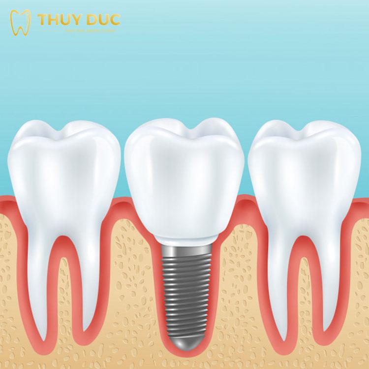Những yếu tố nào ảnh hưởng đến chi phí trồng răng implant 1