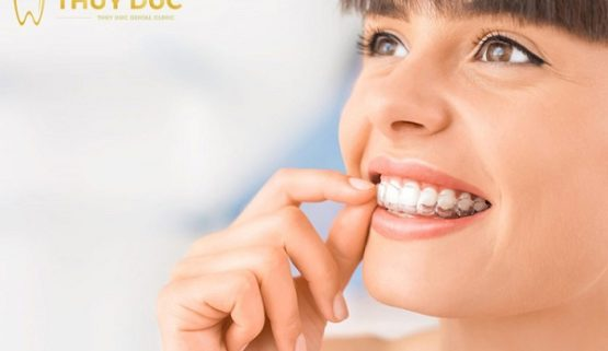 Niềng răng trong suốt là gì? Niềng răng trong suốt có đau không?