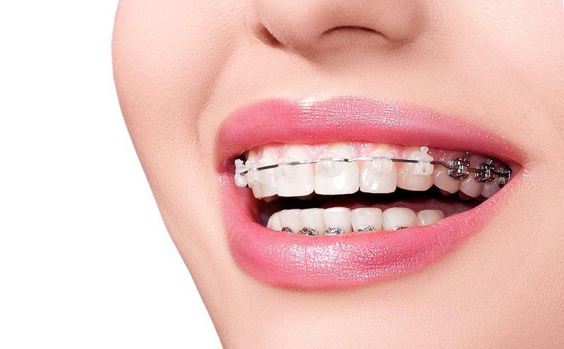 Niềng răng là gì? 1