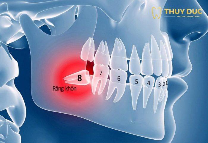 Khi nào cần nhổ răng khôn mọc lệch, mọc ngầm? 1