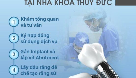 Quy trình trồng răng Implant chuẩn Y khoa